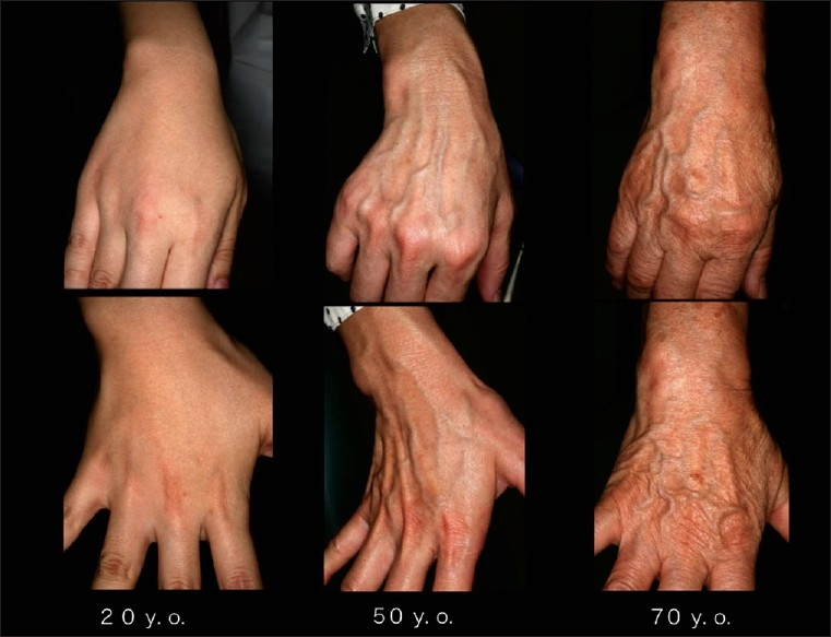 When-the-dorsal-surface-of-the-hand-skin-is-aged-due-to-natural-aging-or-exposure-to-UV